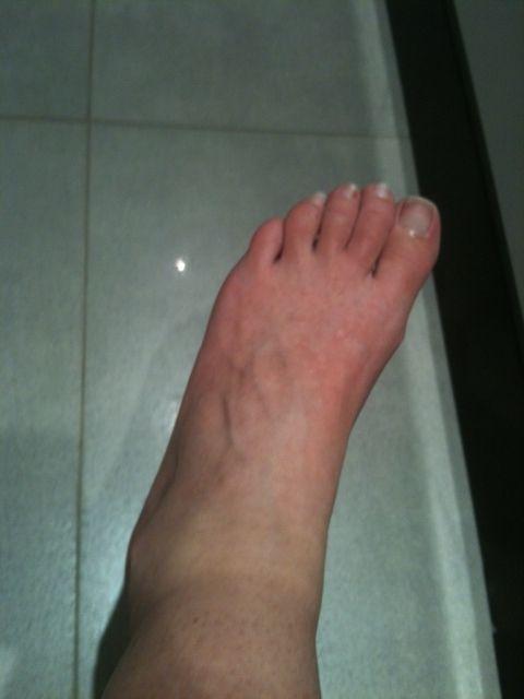 mauvaise circulation sanguine pieds rouges
